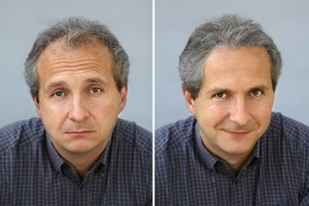 Skuteczne Tabletki Na Wypadanie Włosów